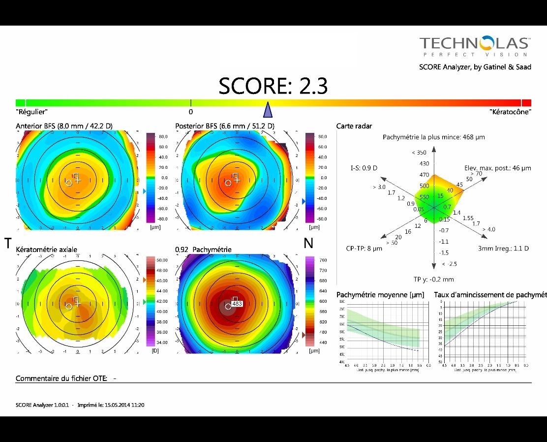 early keratoconus score topography pattern