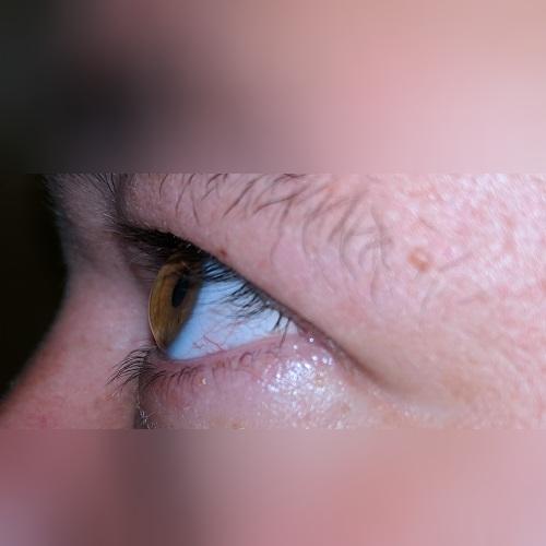 pellucid marginal degeneration corneal profile defeatkeratoconus.com