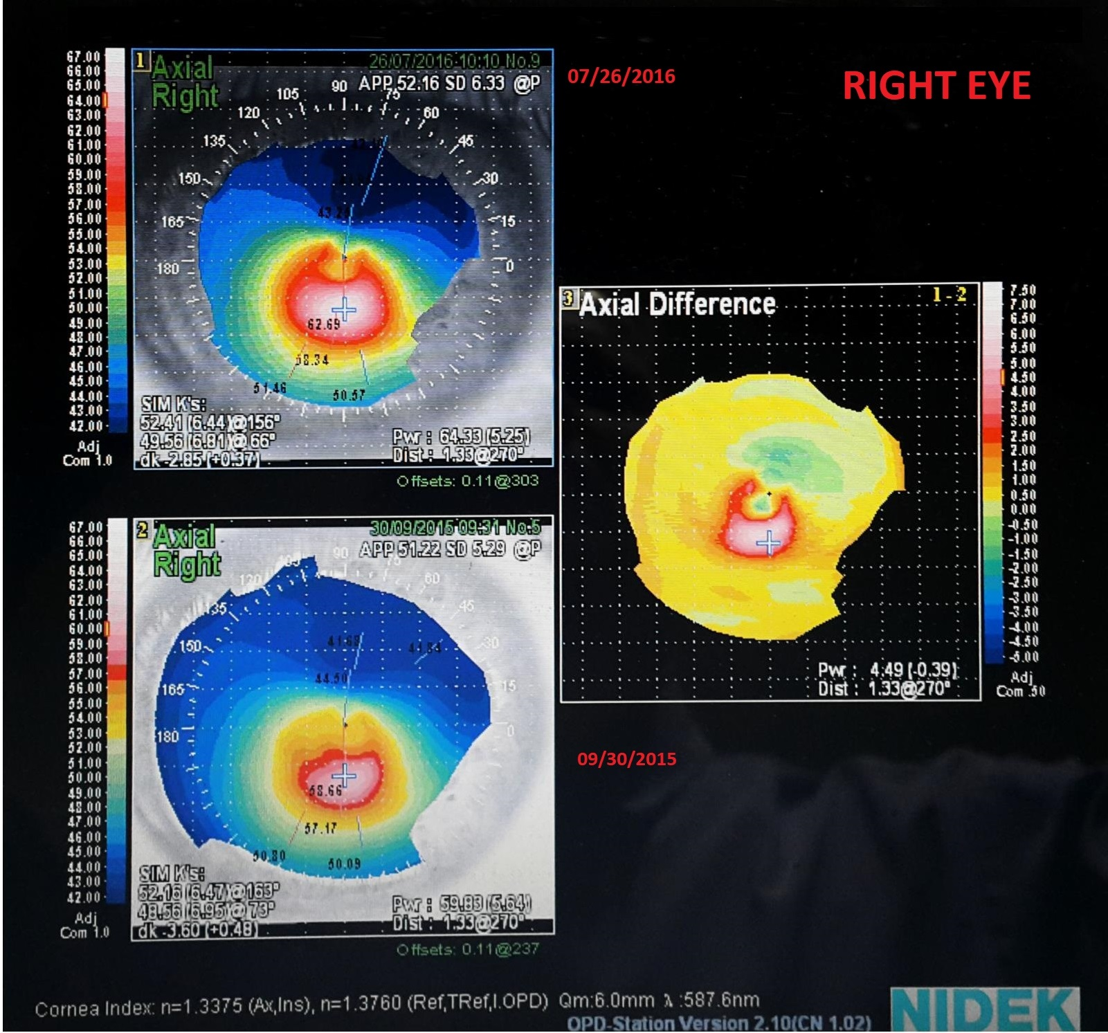 difference map showing keratoconus progression