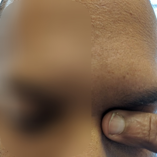 left eye rubbing with index finger pulp