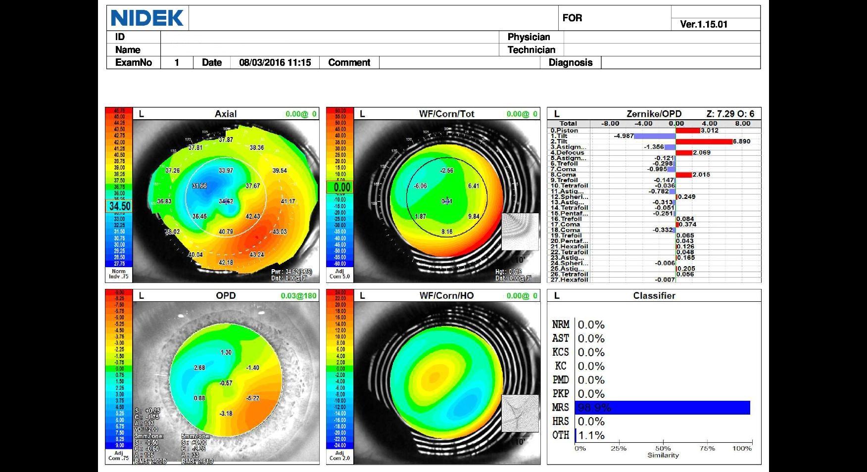 corneal asymmetry