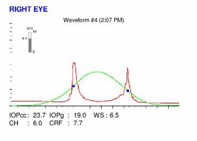 Ocular Response Analyzer waveform and hysteresis value