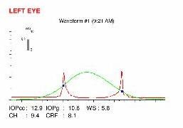 ocular response analyser