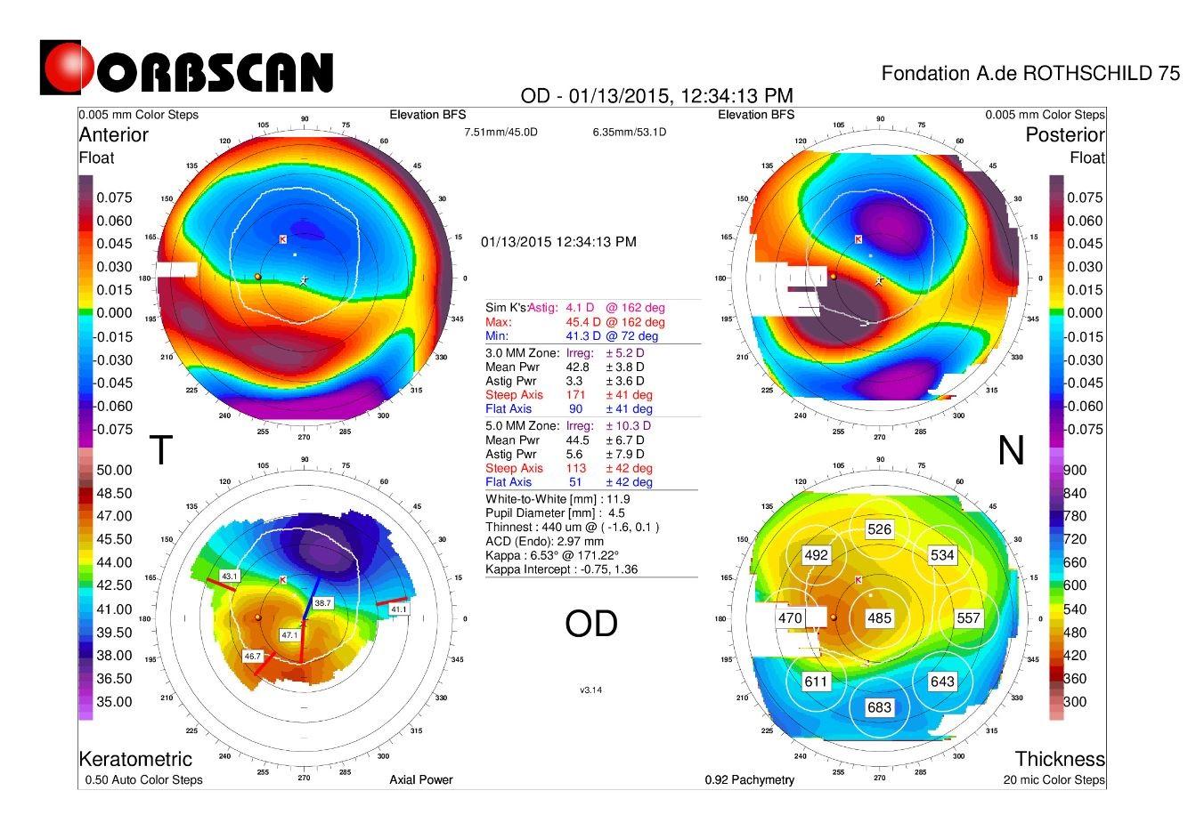 orbscan map post LASIK ectasia