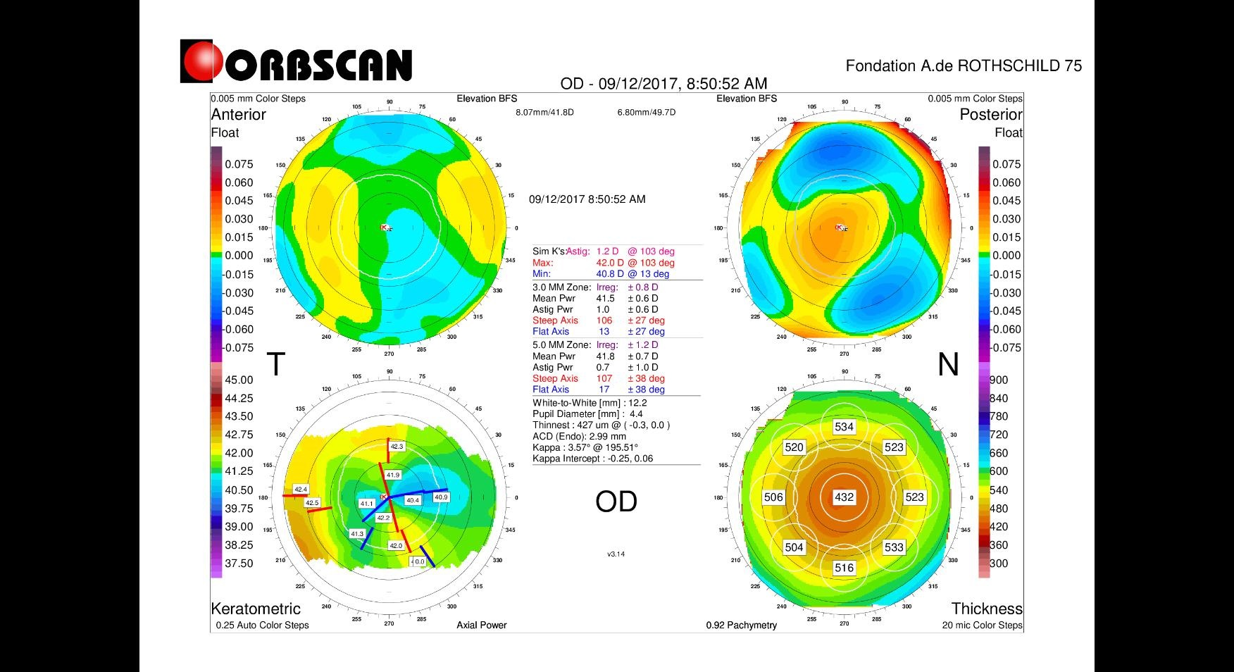 orbscan mapping after myopic LASIK