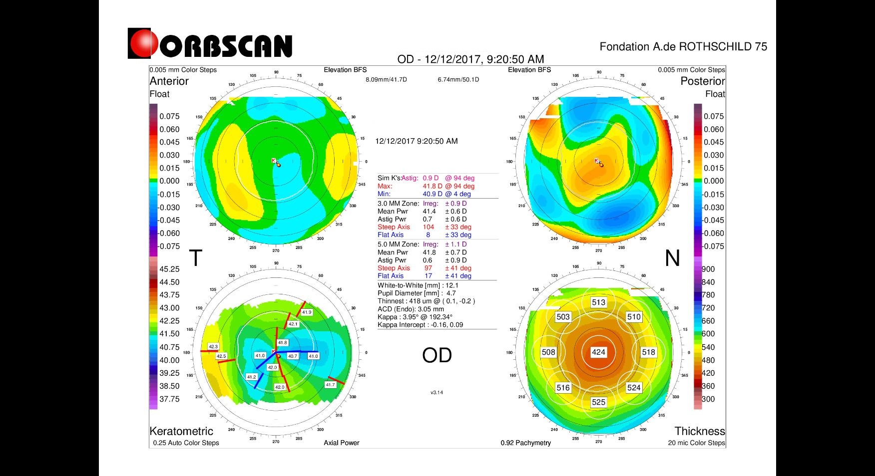 Orbscan right eye post myopic LASIK