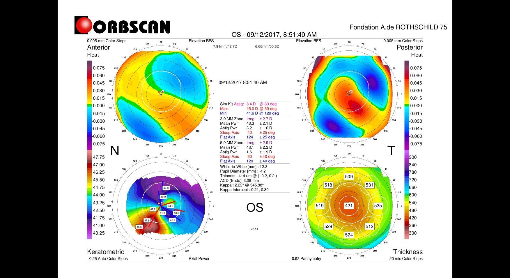 post LASIK ectasia Orbscan map