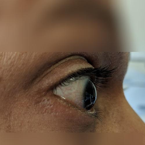 Corneal ectasia on right eye