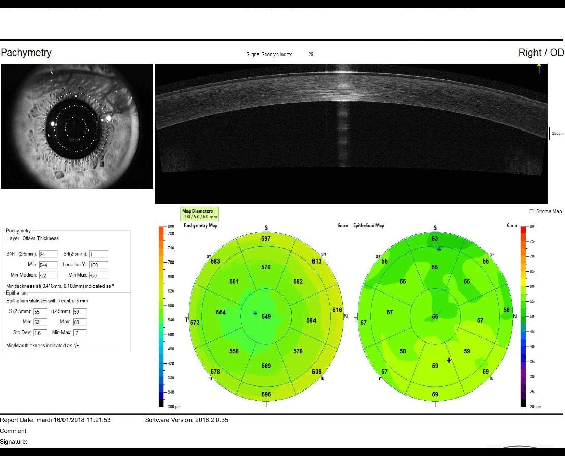 high resolution OCT corneal map of a normal eye