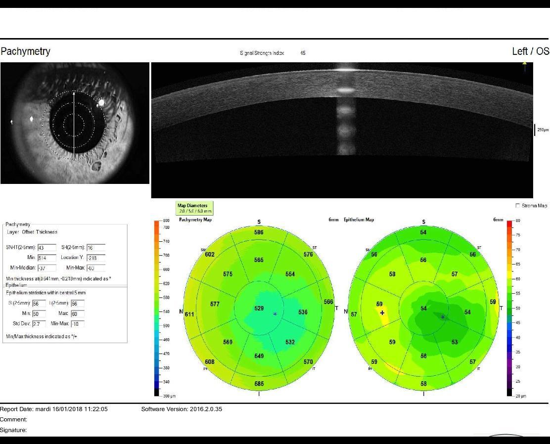 high resolution OCT in a keratoconus eye