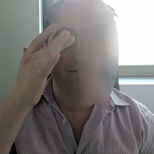 patient rubbing his right eye