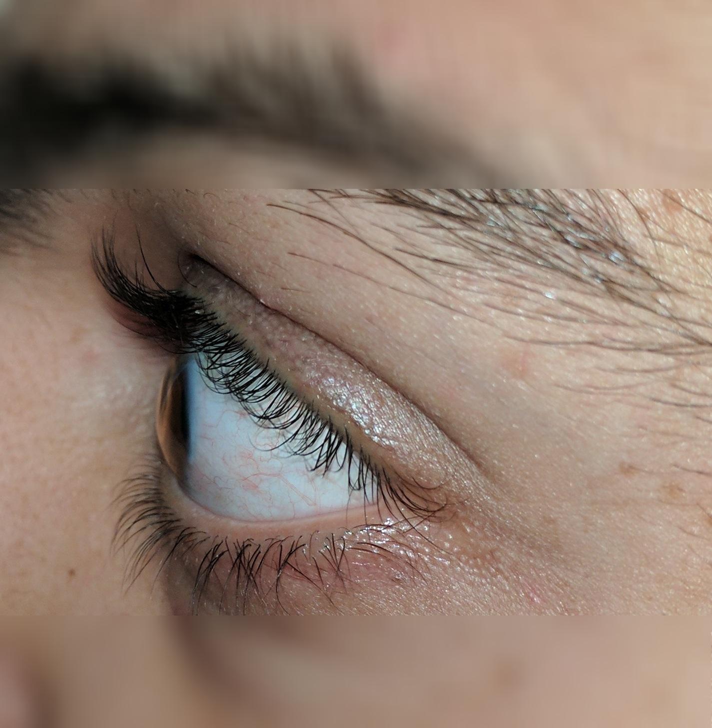left eye profile