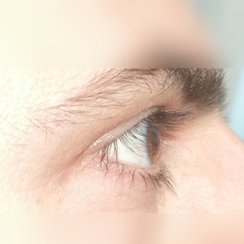 photo of right eye profile