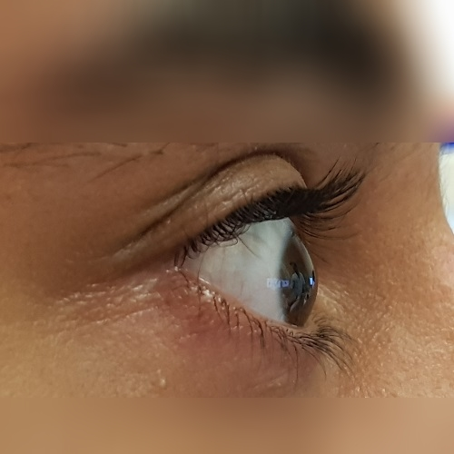 right profile of an eye with keratoconus