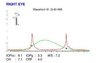 ocular response analysis examination of an eye with keratoconus
