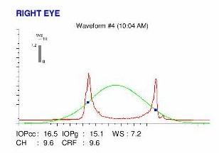 ORA biomechanics cornea
