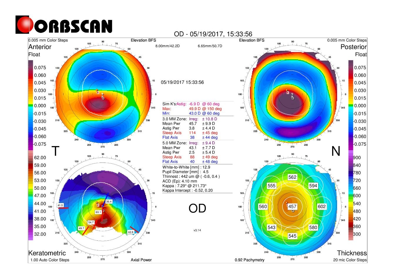 Orbscan map right eye with keratoconus