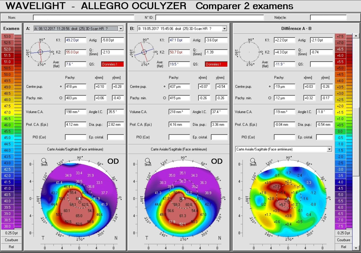 Pentacam keratoconus progression on a difference map