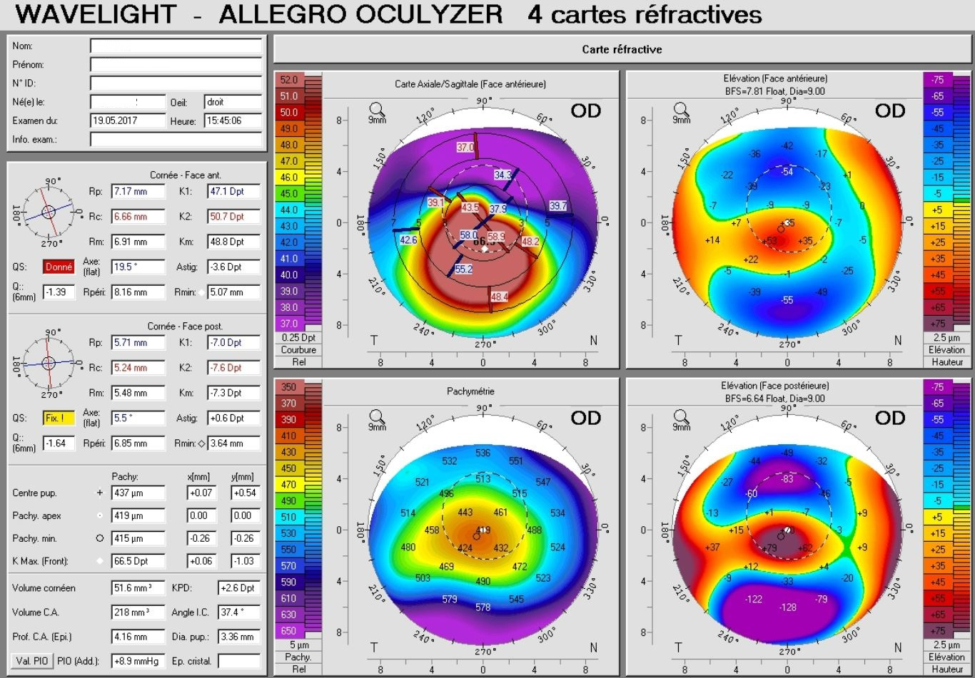 Pentacam map right eye with keratoconus