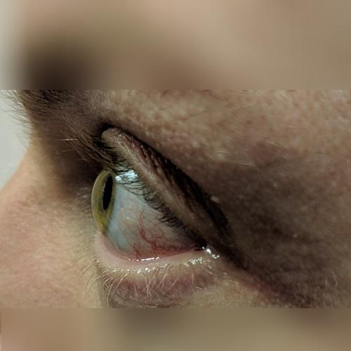 photo of a right cornea with keratoconus
