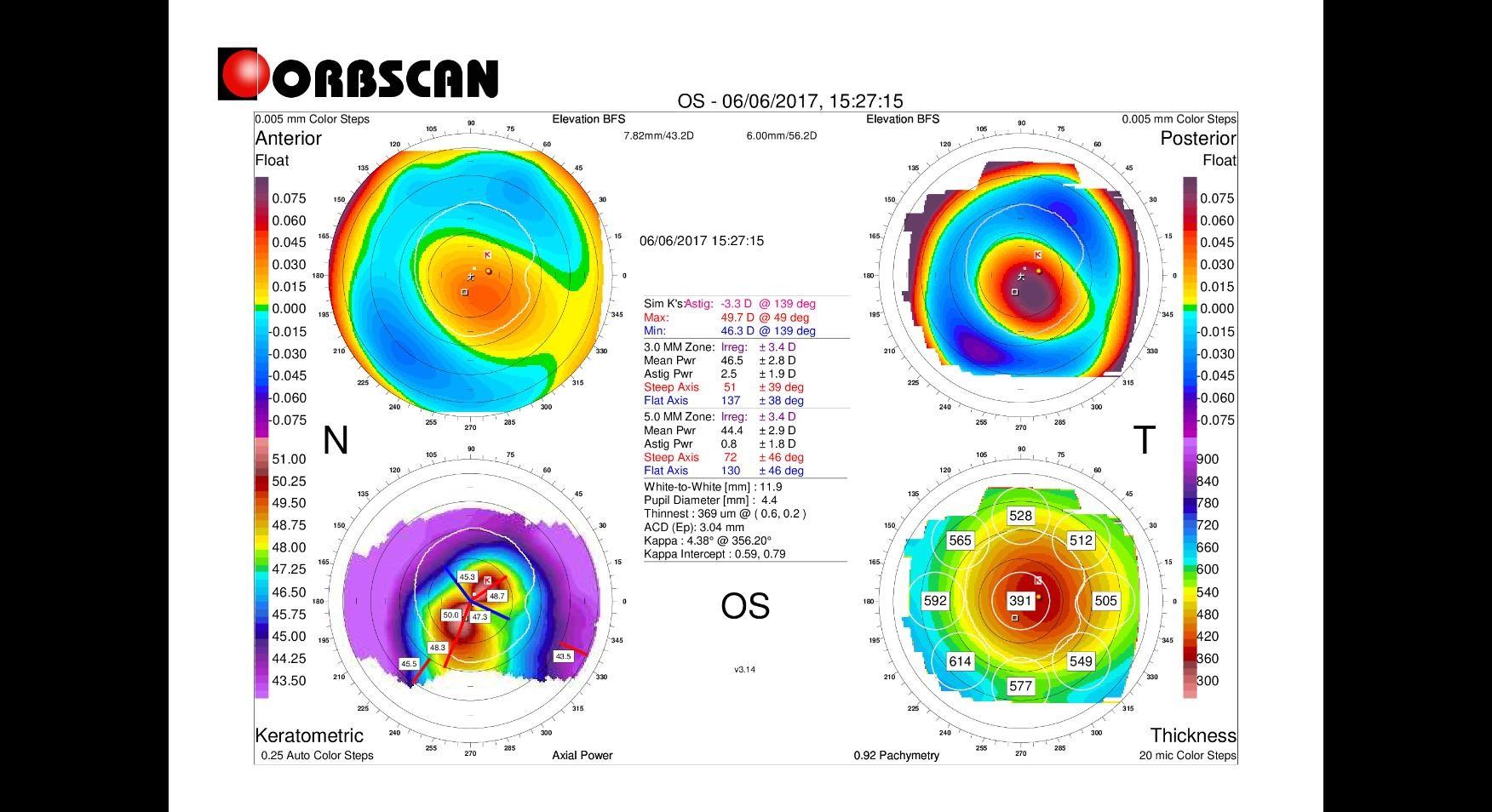 orbscan left eye keratoconus