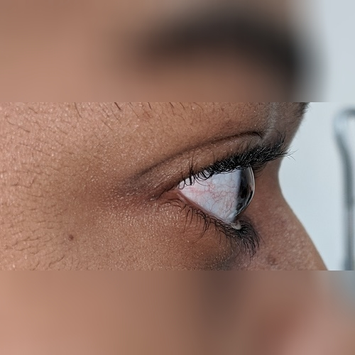 photo of an eye with keratoconus