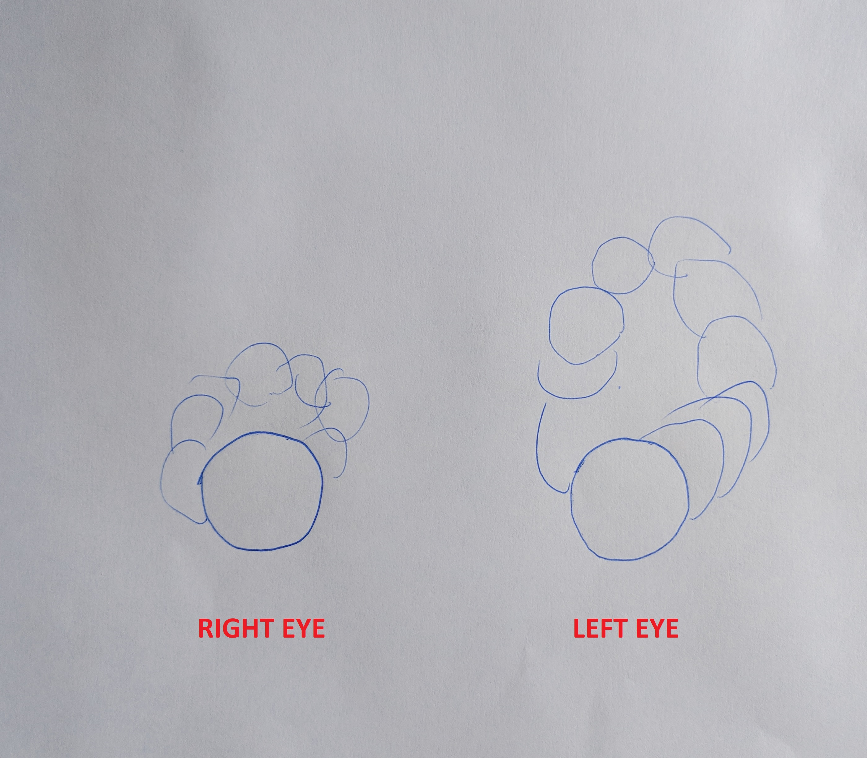 drawing of the visual symptoms of a patient with keratoconus