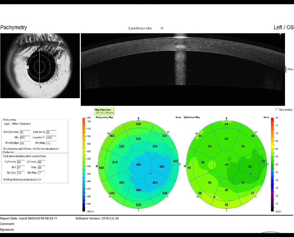 OCT epithelial thickness map