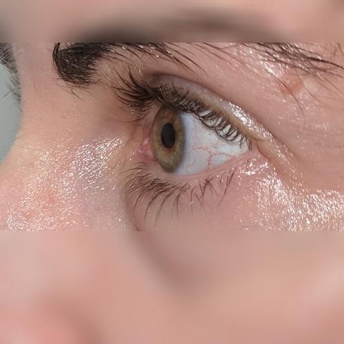 defeat keratoconus left eye profile