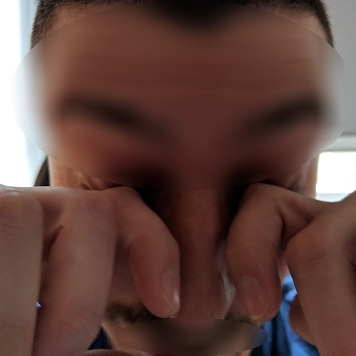 eye rubbing with knuckles