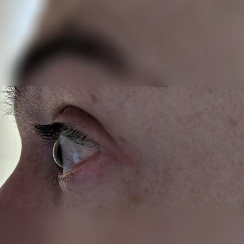 left cornea profile keratoconus