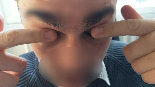 eye rubbing forces kereatoconus