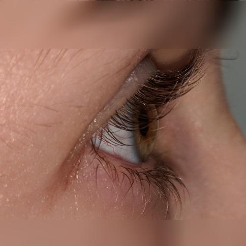 photo right eye post LASIk ectasia.