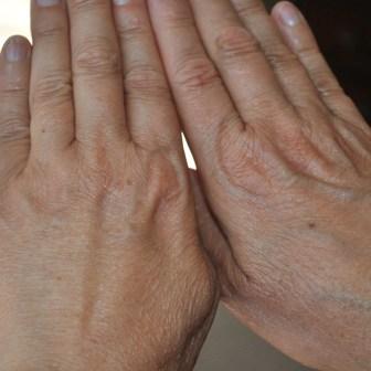 dr sister nanofat hands after