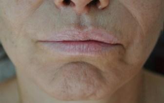 dr sister nanofat mouth after