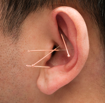 טיפול בדיקור אוזן