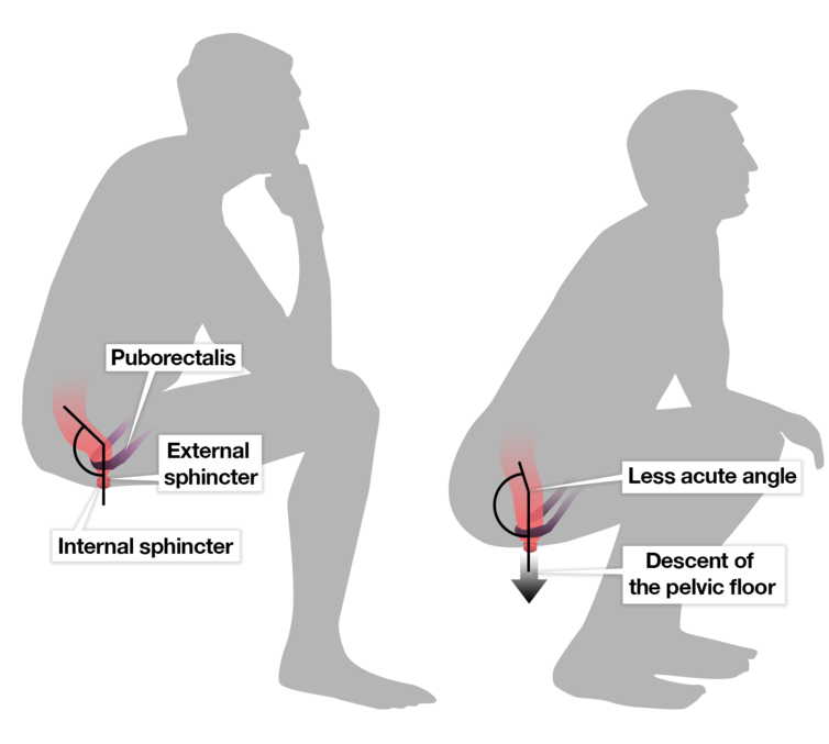 Kloset Jongkok Melemaskan Otot Puborectalis