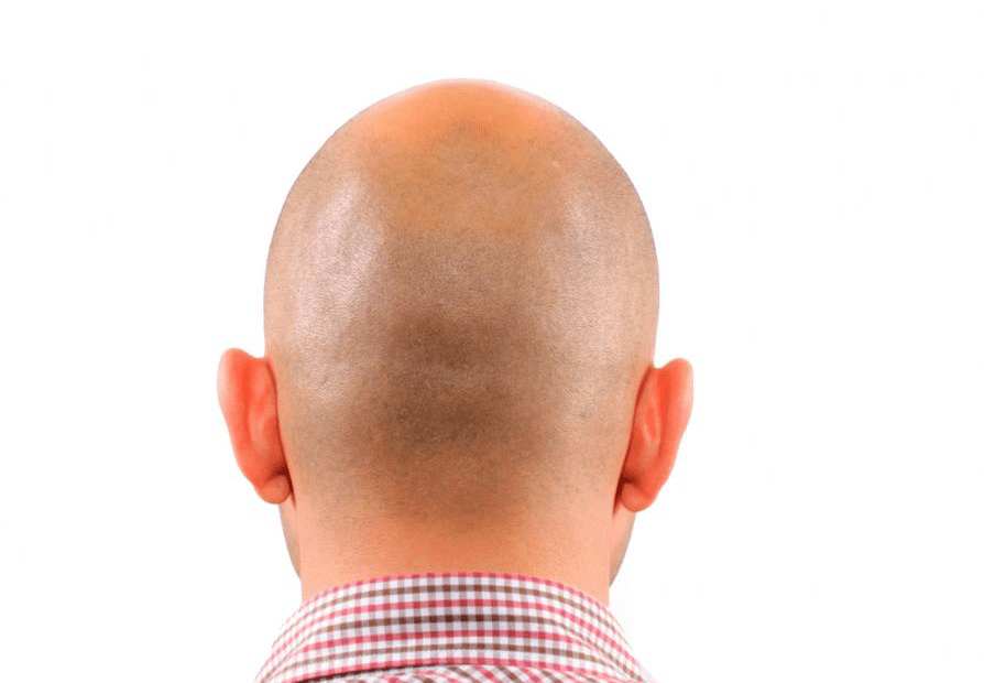 Hair Loss in Young Men