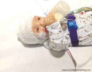 Benjamin's Second Sleep Study Results  (Achondroplasia)