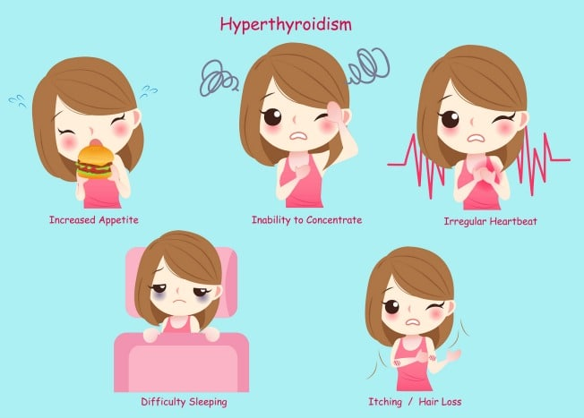 hyperthyroidism the cause symptoms