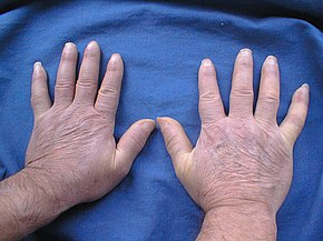 End the Discomfort of Scleroderma with Homeopathy 1