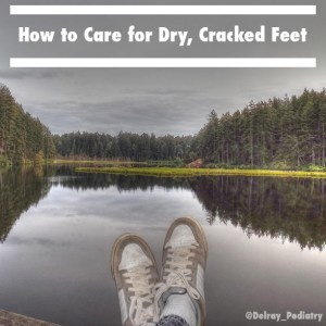 Learn how to care for dry, cracked feet!