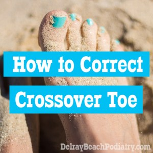 How do you correct crossover toe? Keep reading to find out!