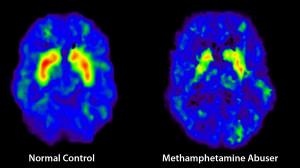 brain scan meth user