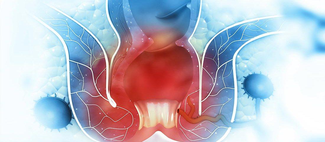 Demesa | Principales causas y tratamiento para la Enfermedad Hemorroidal