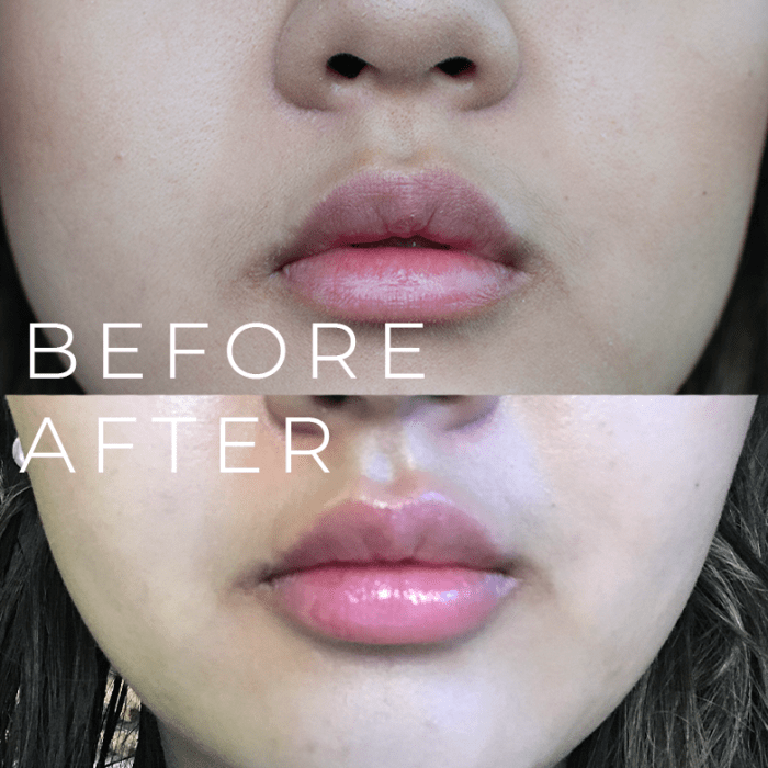 lip fillers before and after - Demi Bang