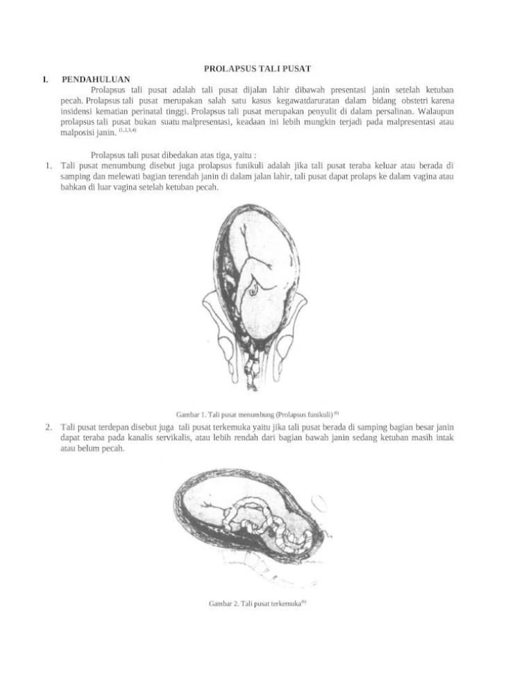 Prolapsus Tali Pusat : prolapsus, pusat, Prolapsus, [DOCX, Document]