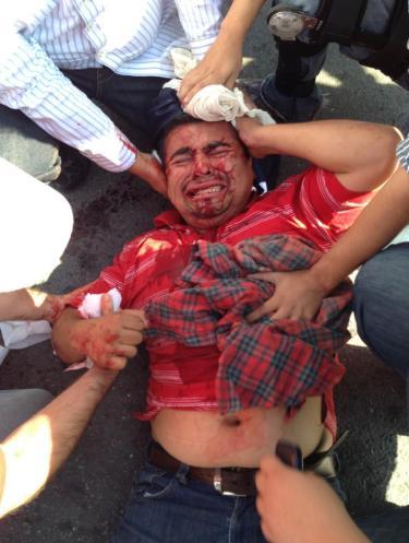 No es la primera vez que el periodista Milton Martínez es víctima de la ira del gobernador.