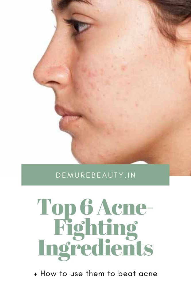 acne fighting ingredients