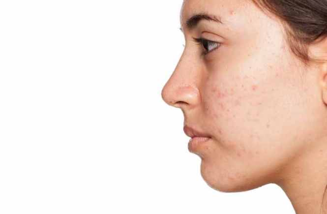 acne-fighting ingredient